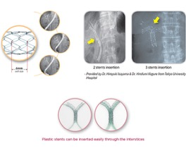 LCD biliary stent d