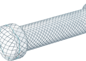 S esophageal stent